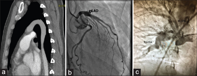Figure 3: (a) Aortography showed severe tortuosity and elongation of the aorta. (b) Single coronary artery showed aneurysmal dilation of the proximal part of the left anterior descending and right coronary artery. (c) The pulmonary angiogram showed multiple peripheral stenosis